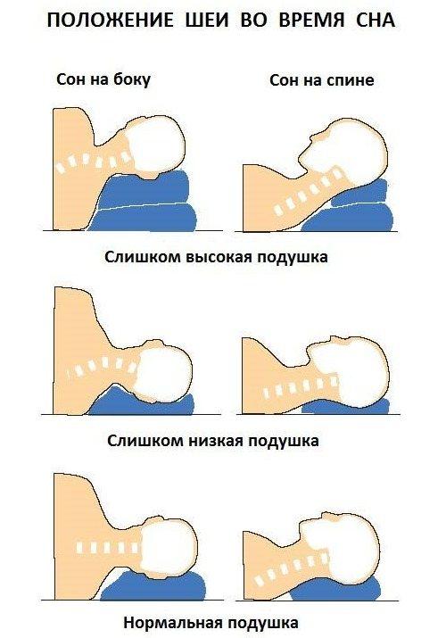Правильное расположение шеи во время сна